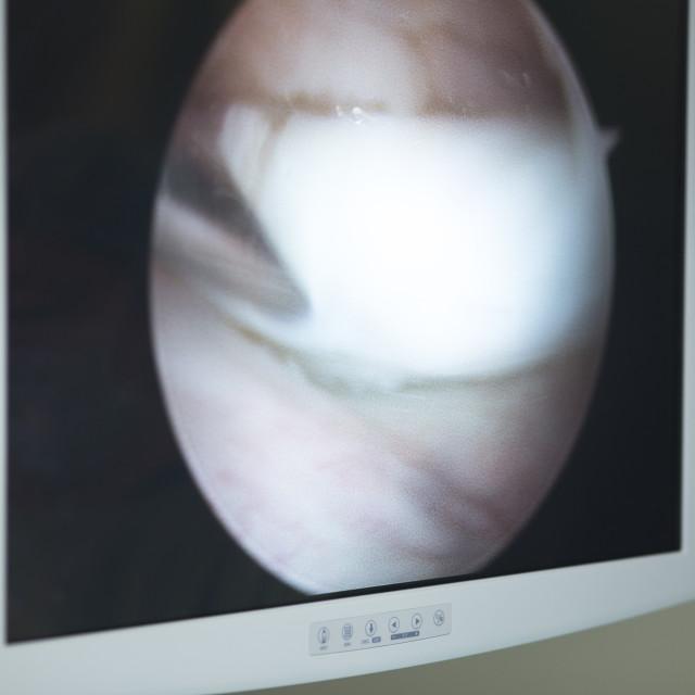 """Knee surgery operation screen"" stock image"