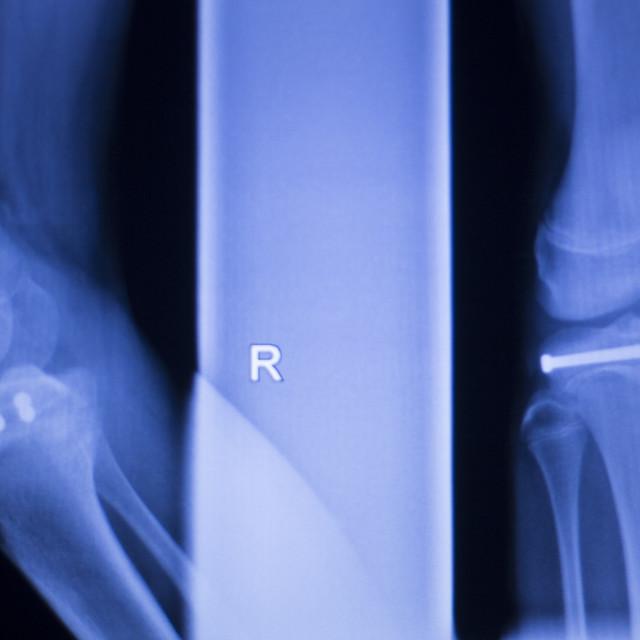 """Knee joint implant xray"" stock image"