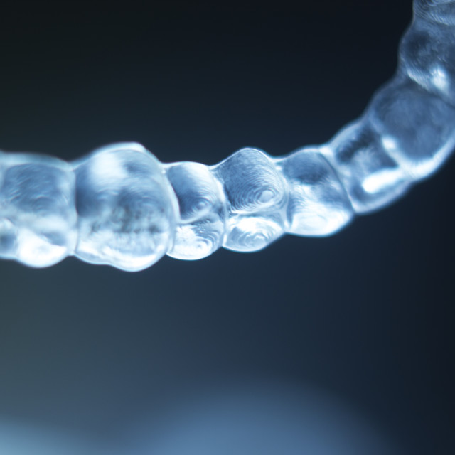 """""""Invisible teeth brackets aligners"""" stock image"""