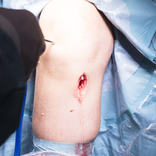 """Surgical operation knee surgery"" stock image"