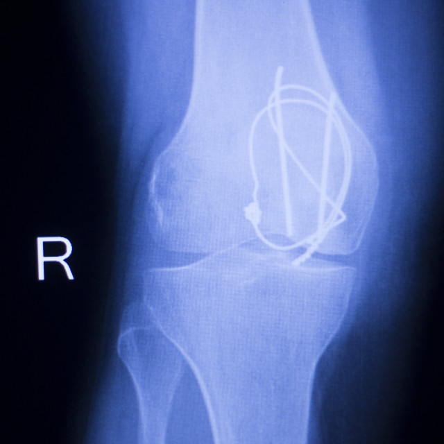 """Knee joint implant xray"" stock image"
