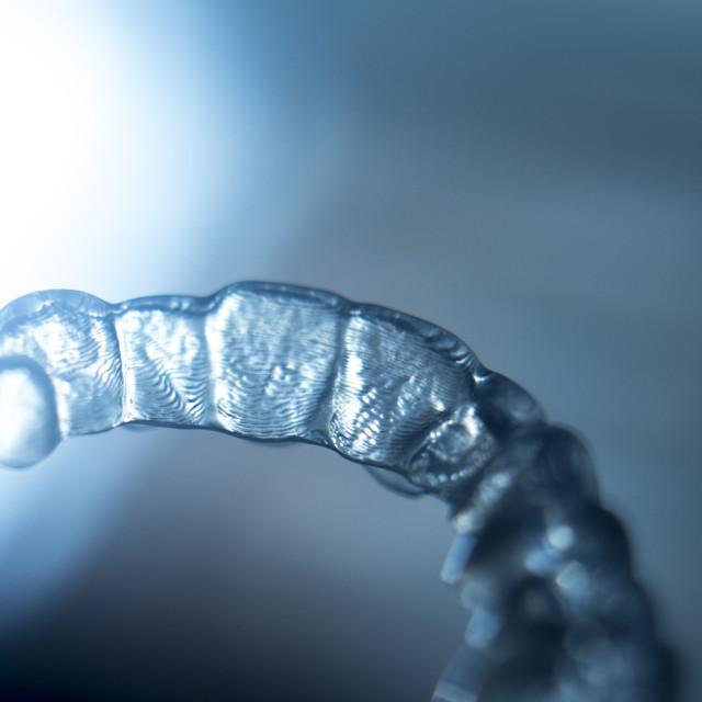 """Invisible orthodontics brackets"" stock image"
