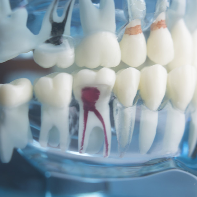 """Dental teeth dentistry model"" stock image"