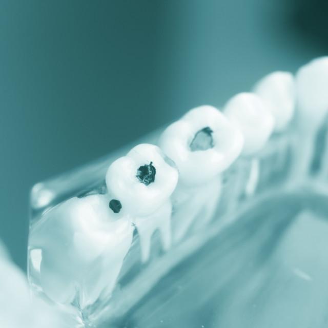 """Dental teeth decay plaque model"" stock image"