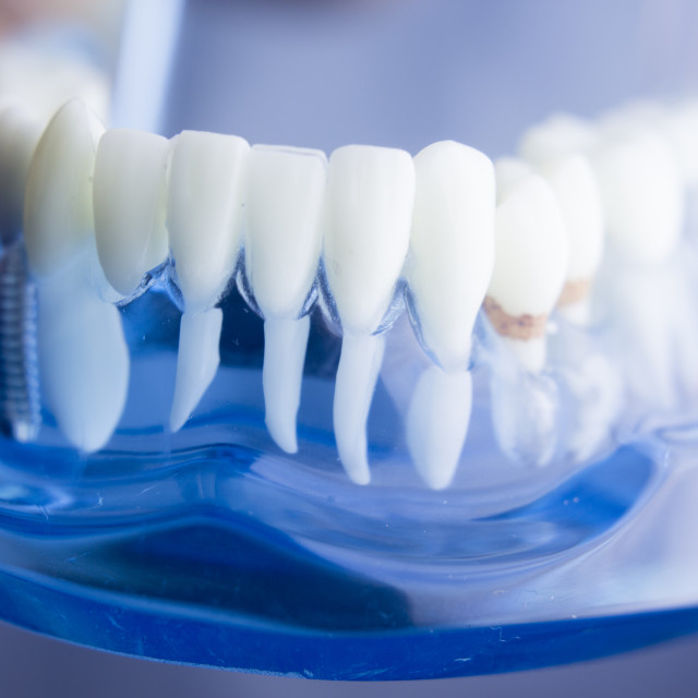 """Dental teeth plaque model"" stock image"