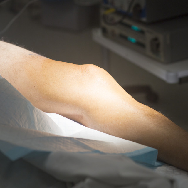 """Knee surgery surgical operation"" stock image"