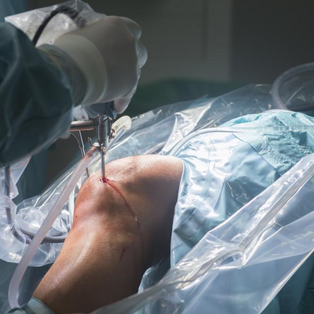 """Knee surgery hospital operation"" stock image"