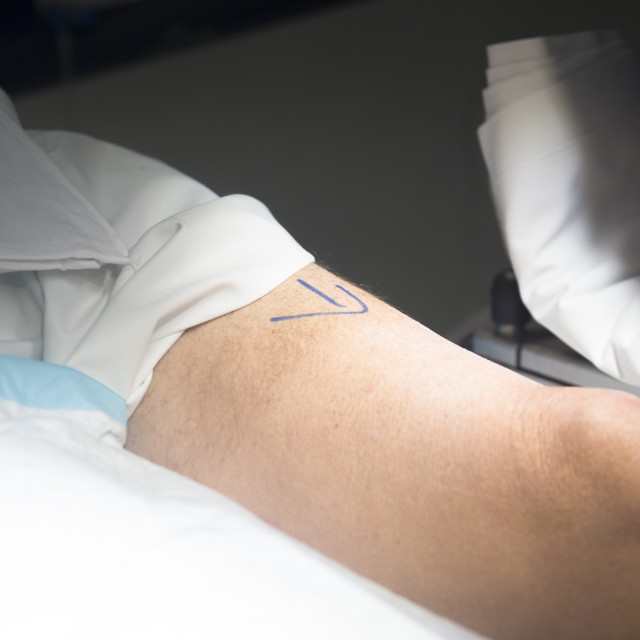 """""""Patient leg in operating theater"""" stock image"""