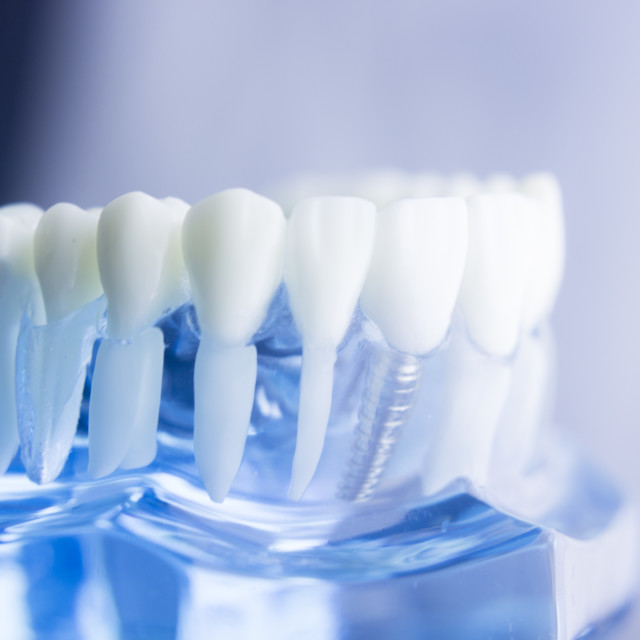 """""""Dental tooth root model"""" stock image"""