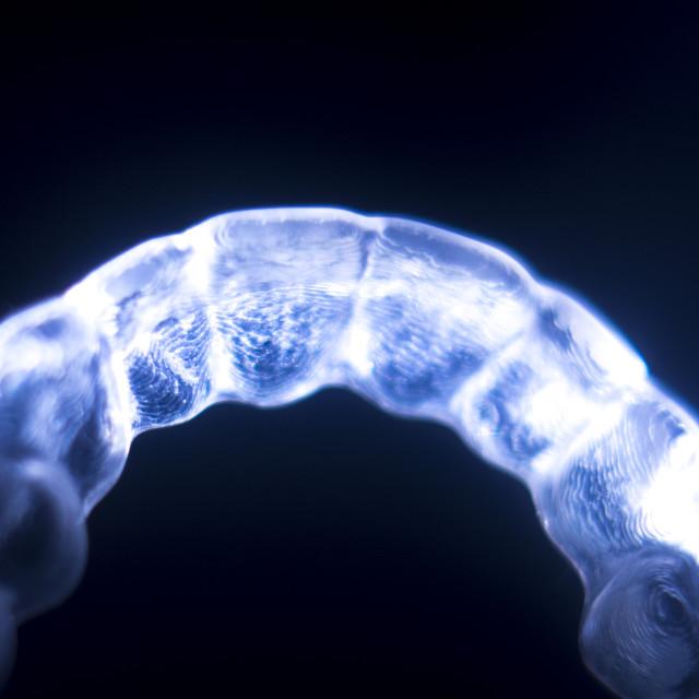 """Orthodontics dental brace"" stock image"