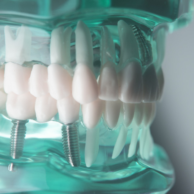 """""""Dental titanium implant screw"""" stock image"""
