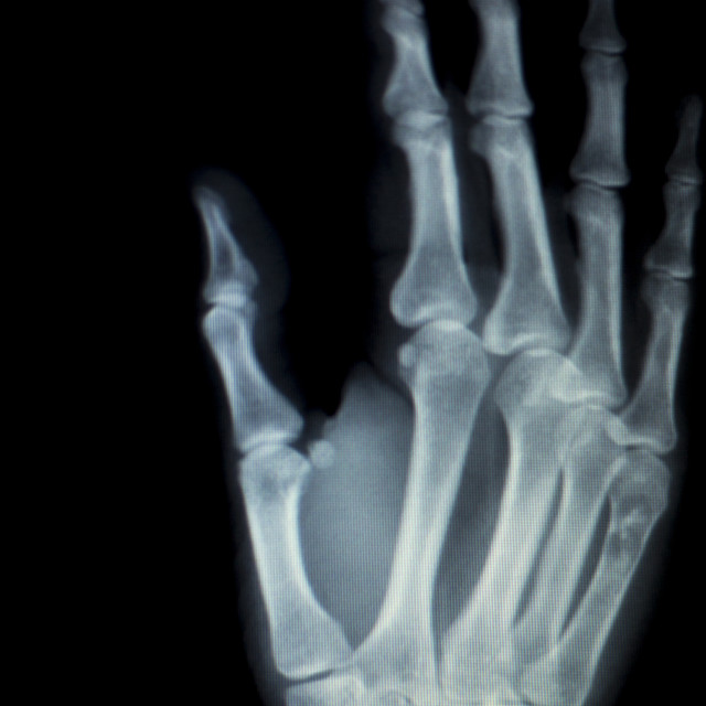 """Hand fingers inury Xray scan"" stock image"