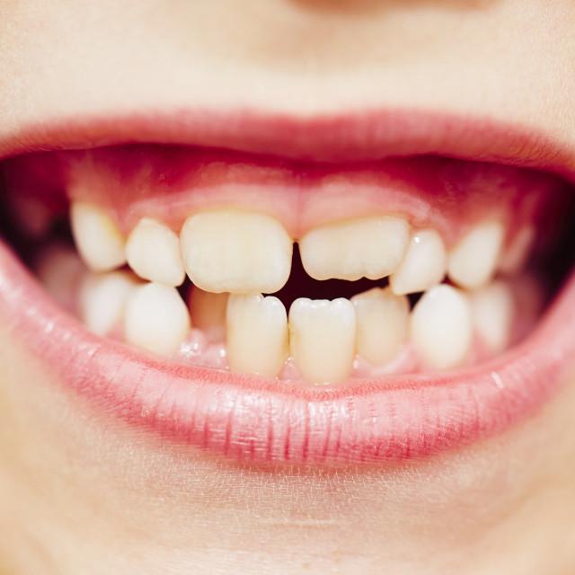 """Teeth"" stock image"
