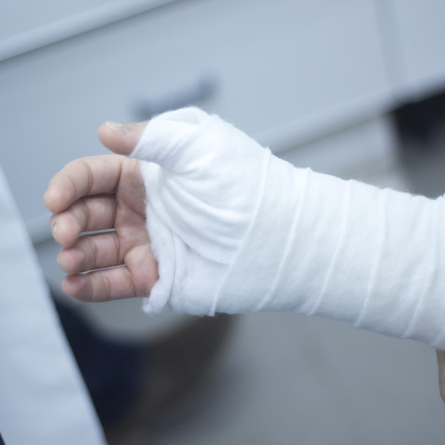 """Doctor patient plaster cast"" stock image"