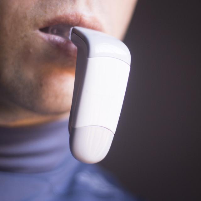 """Dental braces aligners accelerator"" stock image"