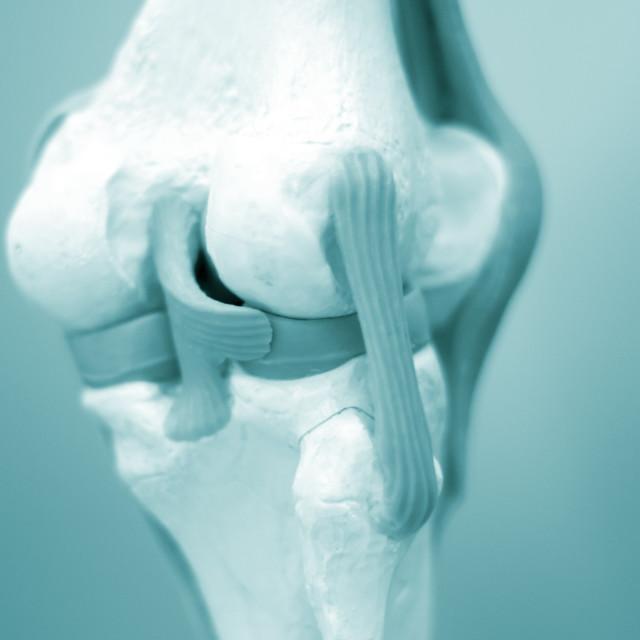 """Knee meniscus medical model"" stock image"