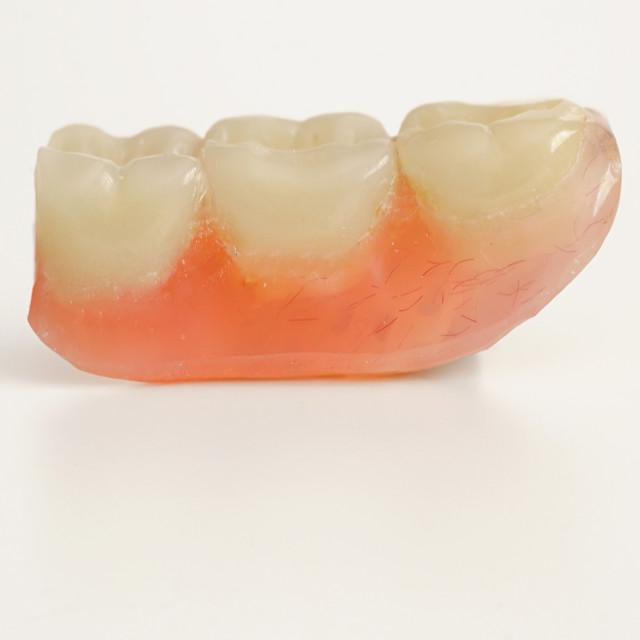 """Three prosthetic teeth"" stock image"