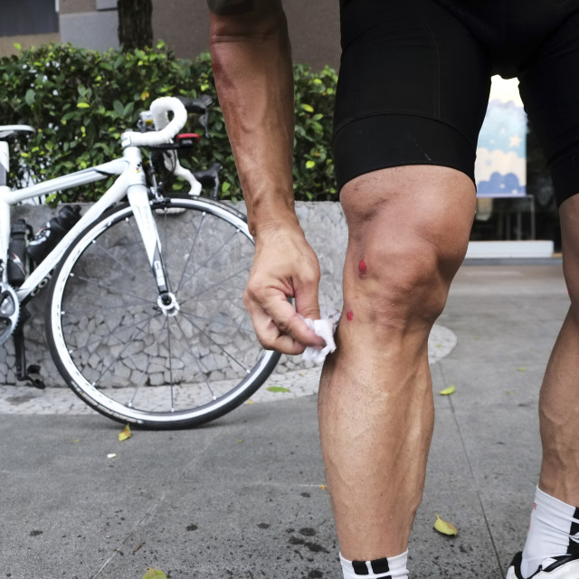 """Cyclist cleaning wounds on injured leg"" stock image"