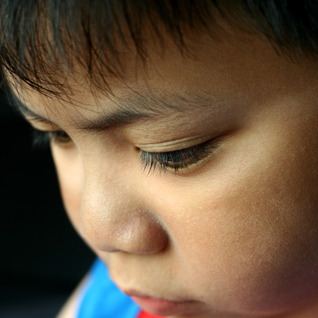"""""""Close up photo of a young kid's face with sun burn"""" stock image"""