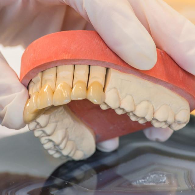 """Dentures, prosthesis"" stock image"