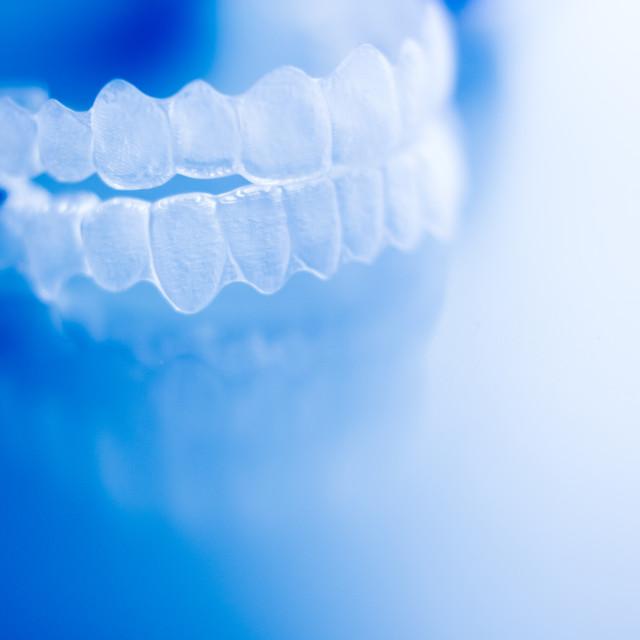"""""""Dental orthodontic aligner"""" stock image"""