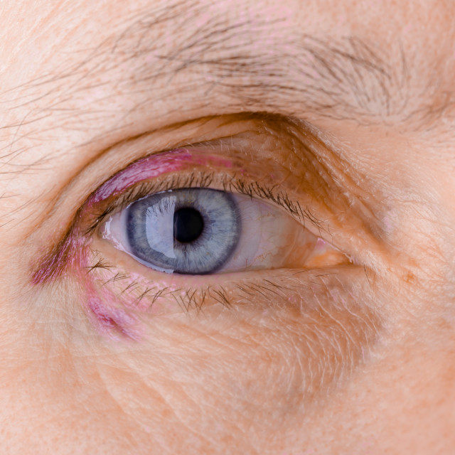 """Injured eye due to capillary rupture"" stock image"