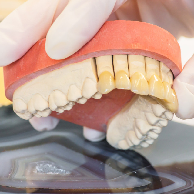 """Dentures, prosthesis and oral hygiene."" stock image"