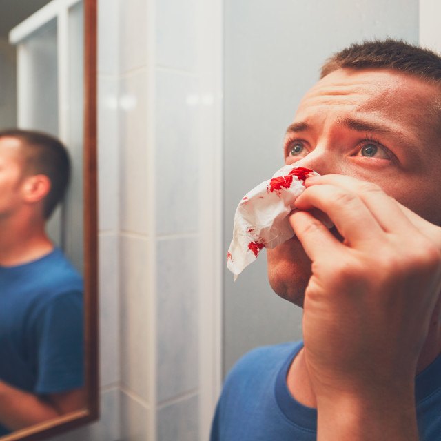 """Man with nose bleed in bathroom. For themes of illness, injury or violence."" stock image"