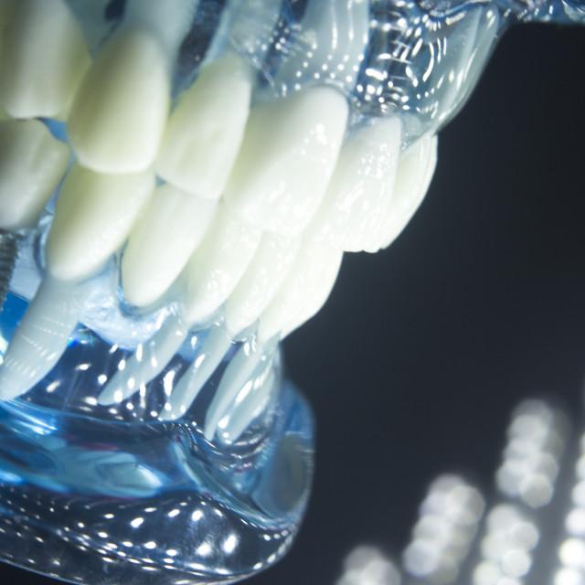 """Dentists dental teeth implant"" stock image"