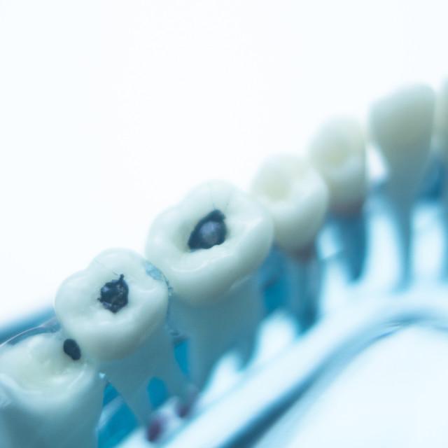 """Dentists dental teeth model"" stock image"