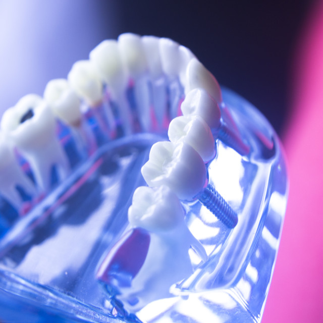 """""""Dental tooth health decay"""" stock image"""