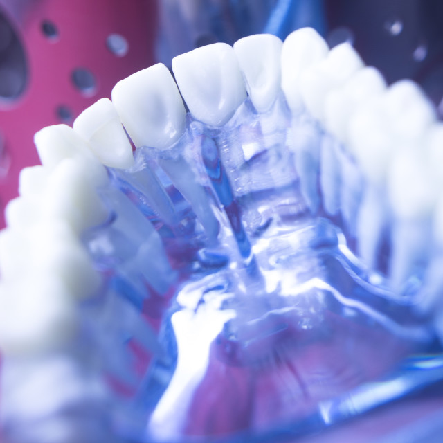 """""""Dentists dental tooth model"""" stock image"""