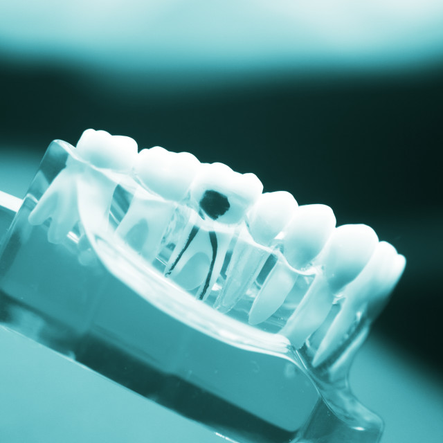 """""""Dental tooth decay problem"""" stock image"""