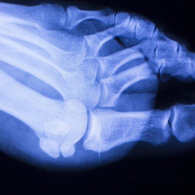 """""""Foot toes xray test scan"""" stock image"""