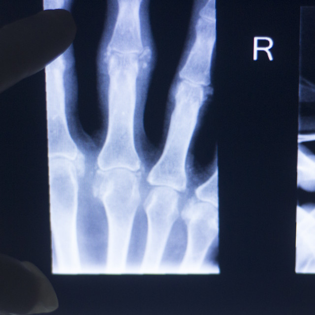 """""""Hand fingers xray test scan"""" stock image"""