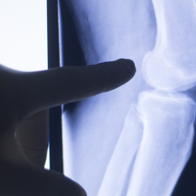 """""""Knee joint xray test scan"""" stock image"""