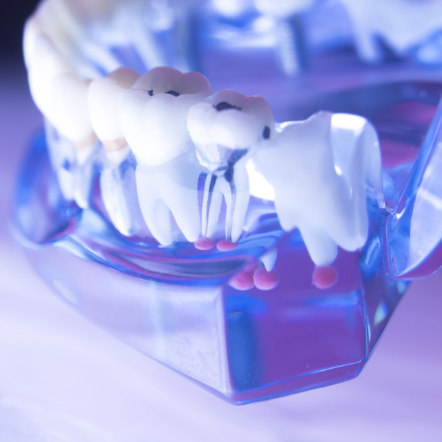 """""""Dental tooth root canal"""" stock image"""