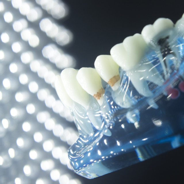 """""""Dental tooth plaque decay"""" stock image"""