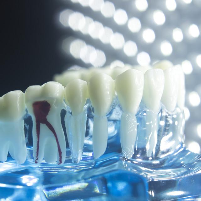 """""""Dental teeth model root"""" stock image"""