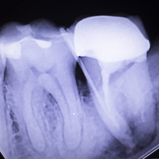 """""""Tooth crown root canal"""" stock image"""