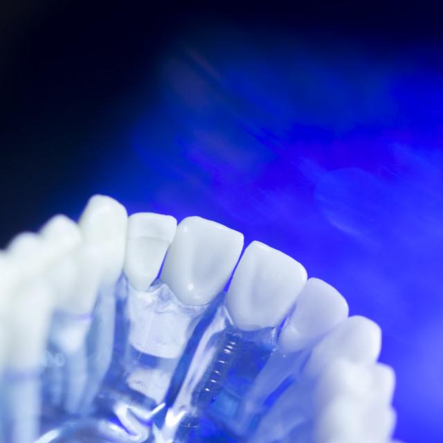 """Dental alignment teeth model"" stock image"