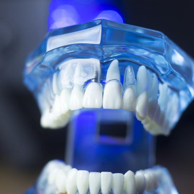 """Dental teeth mouth health"" stock image"