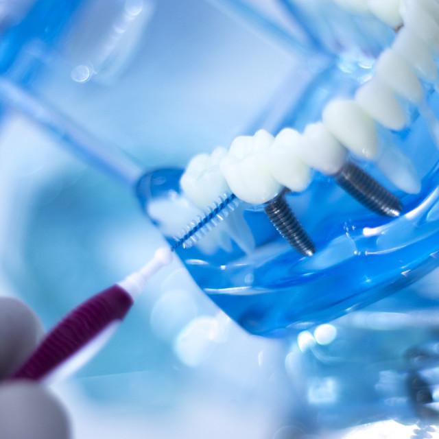 """Interdental teeth cleaning"" stock image"