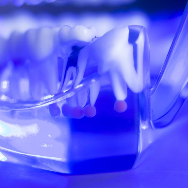 """Dental teeth root nerve"" stock image"