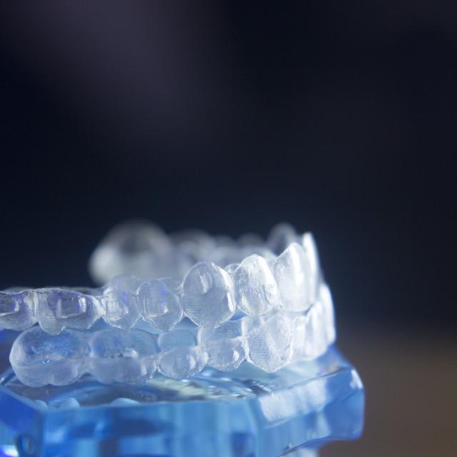 """""""Dental teeth bracets model"""" stock image"""