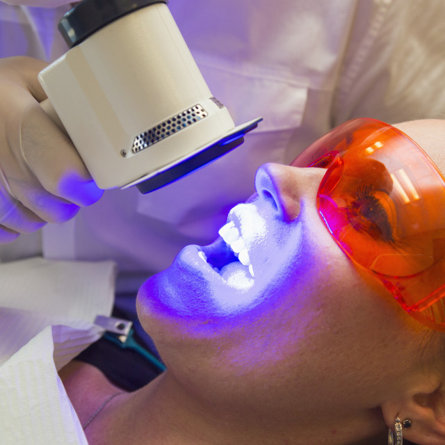"""Dentist using fluorescence visualization to check for oral diseases;..."" stock image"