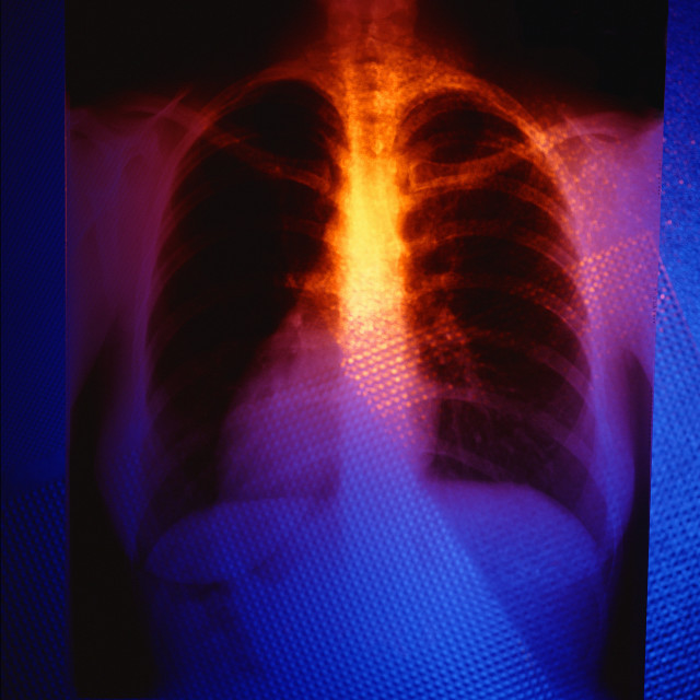 """""""Color X-Ray Of Chest Cavity"""" stock image"""