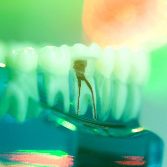 """Dental teeth dentists model"" stock image"