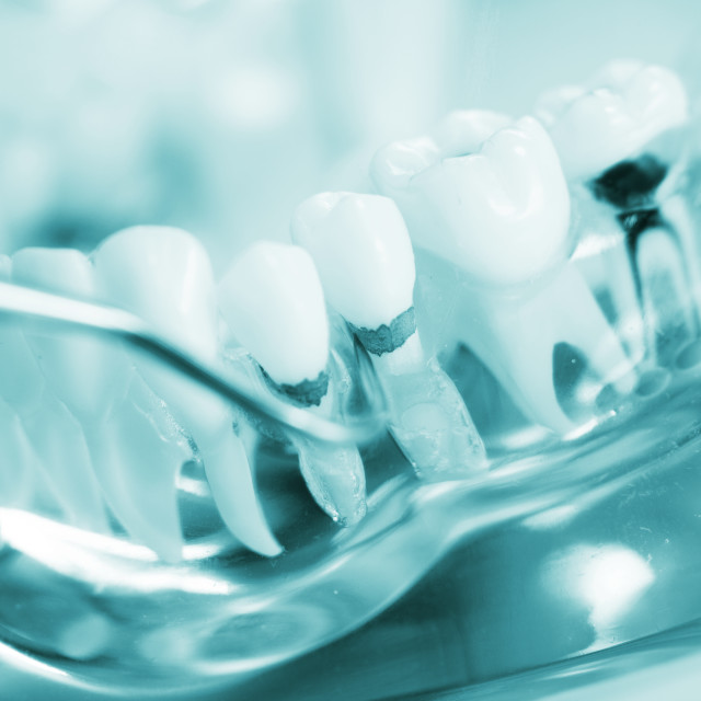 """Dental teeth dentist model"" stock image"