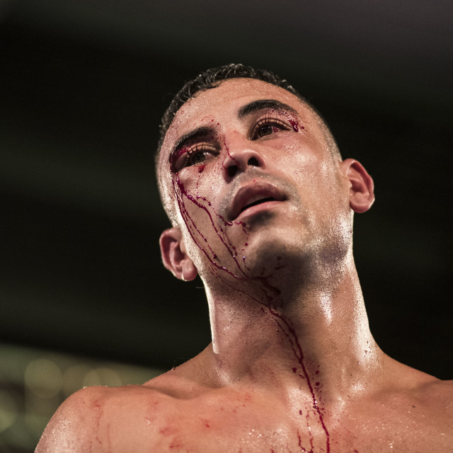 """Boxer face at the end of the fight"" stock image"